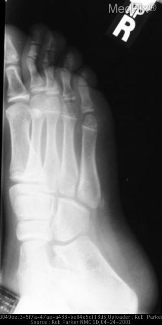 Avulsion fracture off the base of the 5th metatarsal.