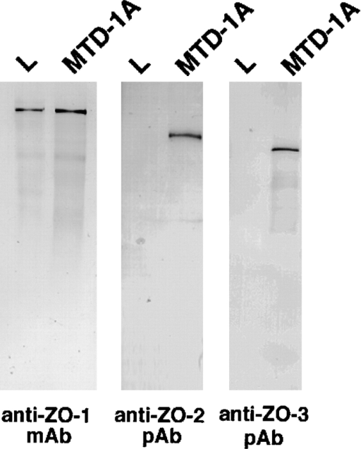 Expression of ZO-1, ZO-2, and ZO-3 in mouse L fibroblasts. The total cell lysate of cultured mouse L fibroblasts and MTD-1A epithelial cells were subjected to immunoblotting with anti–ZO-1 mAb (anti–ZO-1 mAb), anti–ZO-2 pAb (anti–ZO-2 pAb), or anti–ZO-3 pAb (anti–ZO-3 pAb). ZO-1, ZO-2, and ZO-3 were expressed in MTD-1A cells, whereas only ZO-1 was detected in L fibroblasts. Bars indicate molecular masses of 200, 116, 97, 66, 45, and 31 kD, respectively, from the top.