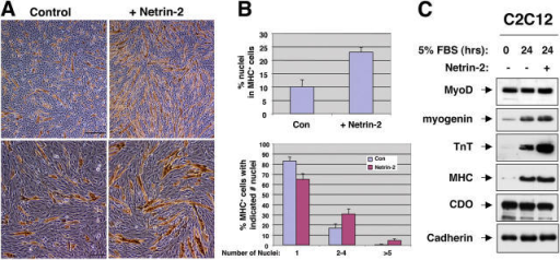 Netrin-2 promotes myotube formation. (A) Photomicrographs of C2C12 cells were treated with 5% FBS plus or minus recombinant chicken netrin-2 for 24 h, and fixed and stained with an antibody to MHC. Bars: (top) 0.5 mm; (bottom) 0.2 mm. (B) Quantification of myotube formation. Values represent means of triplicate determinations ± 1 SD. (C) Western blot analysis of muscle-specific proteins by C2C12 cells treated with 5% FBS plus or minus recombinant chicken netrin-2 for 24 h. Cell lysates were probed with the indicated antibodies.