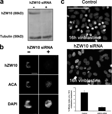 siRNA knockdown of hZW10 results in abrogation of the mitotic checkpoint. (a) Immunoblot of HeLa lysates from cells transfected with (+) or without (−) 50 nM anti-hZW10 siRNA for 72 h and probed with a rabbit hZW10 polyclonal antibody and a mouse monoclonal (B512) tubulin antibody using the Odyssey IR imaging system. A significant (∼90%) reduction in the hZW10 signal was observed. (b) HeLa cells transfected with (+) or without (−) anti-hZW10 siRNA duplexes for 72 h and stained with rabbit anti-hZW10 polyclonal antibodies, human ACA sera, and DAPI. hZW10 kinetochore signal was not detected in cells transfected with the anti-hZW10 siRNA after 72 h. Bar, 10 μm. (c) HeLa cells transfected with anti-hZW10 siRNA duplexes for 72 h and arrested with 25 μM vinblastine for 16 h were analyzed for the accumulation of mitotic cells. DNA was stained with DAPI. Representative images indicate an accumulation of mitotic cells after 16 h vinblastine arrest in the control cells but not in the hZW10 siRNA knockdown cells. Bar, 100 μm. A histogram of the percentage of mitotic cells is shown (n = 3 experiments; >300 cells per experiment; error bars show ± SD).