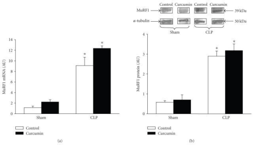 Sepsis-induced expression of MuRF1 in extensor digitorum longus muscles is not influenced by curcumin. Sham-operated and septic rats were treated with vehicle (control) or curcumin (total dose 1800 mg/kg divided into three equal doses administered intraperitoneally 1 hourbefore and 8 and 15 hours after sham-operation or CLP). Muscles were harvested 16 hours after sham-operation or CLP for (a) MuRF1 mRNA levels determined by real-time PCR and (b) MuRF1 protein levels determined by Western blotting. In panel (b), a representative Western blot is shown in the upper portion and results from densitometric quantifications are shown in the lower portion of the figure. Results are means ± SEM with n = 8 in each group. AU: arbitrary units. *P < .05versus corresponding sham group by ANOVA.