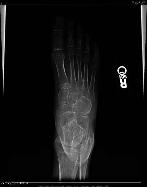 AP radiograph demostrates a well-defined radiolucent medullary mass of the cuboid bone, narrow zone of transition, and no cortical disruption.