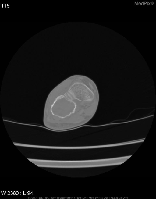 Axial CT of the right foot with bone windows show a lytic mass expanding the cuboid bone  and measuring 3 cm x 2.6 cm in greatest dimension with multiple fluid-fluid levels. The cortex is thinned. No matrix calcifications are seen.