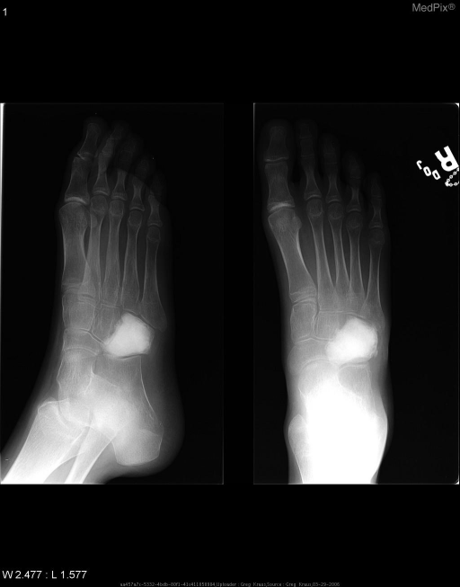 Follow-up radiographs after curettage show the cement placement in the region of curettage without recurrence of the aneurysmal bone cyst.