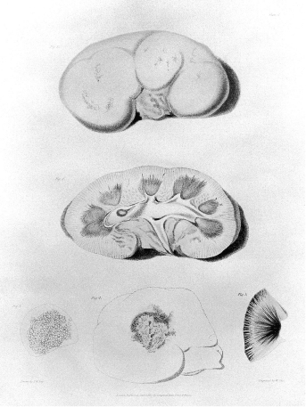Bright's corresponding large white is shown here—Plate IV, Figs. 1 and 2 (top and middle).