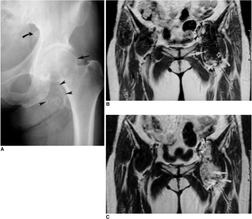 A 52-year-old woman with idiopathic synovial osteochondromatosis of the left hip.A. Anteoposterior radiograph of the left hip depicts juxta-articular calicified and/ or ossified bodies (arrowheads), and an osteophyte (straight arrow). Note that superior to the iliopubic line, a calcified and/or ossified body (curved arrow) is also present, suggesting intrapelvic extension of the lesion.B. T1-weighted coronal MR image of the same patient shows an intra-articular lesion of low signal intensity (curved arrows), signal intensity which corresponds to an area of fat (straight arrow), and a conglomerated lesion (open arrow). Note that intrapelvic extension of the iliopsoas bursa has occurred (arrowheads).C. T2-weighted image, obtained at the same level as in B, shows intra-articular bodies of focal low signal intensity (curved arrows), and a conglomerated lesion (straight arrow). Note that intrapelvic extension of the iliopsoas bursa is again apparent (arrowheads).