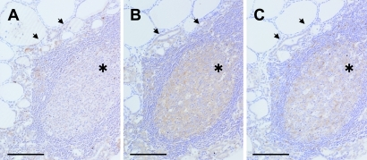 Photomicrographs of CT lesions immunostained for COX-2 (A), mPGES-1 (B) and MMP-9 (C). Immunoreactivities for COX-2 (A), mPGES-1 (B) and MMP-9 (C) were detected in germinal center lymphocytes (asterisks) and papillary-arranged follicular epithelial cells (arrows) but undetectable in intact follicular epithelial cells (each left upper side). Bars=200 µm. ABC method using DAB. ABC, avidin-biotin-immunoperoxidase complex; CT, chronic thyroiditis; DAB, 3,3'-diaminobenzidine tetrahydrochloride; PTC, papillary thyroid carcinoma.