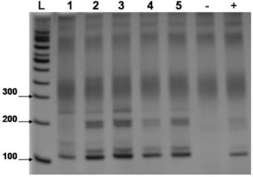 An 8% polyacrylamide gel, representative of 5 assays, showing the reproducibility test of the extraction method. L = 100 bp Ladder, 1-5 = 1st sample set 4 ng/mL DNA. - = negative control. + = S. mansoni DNA positive control.