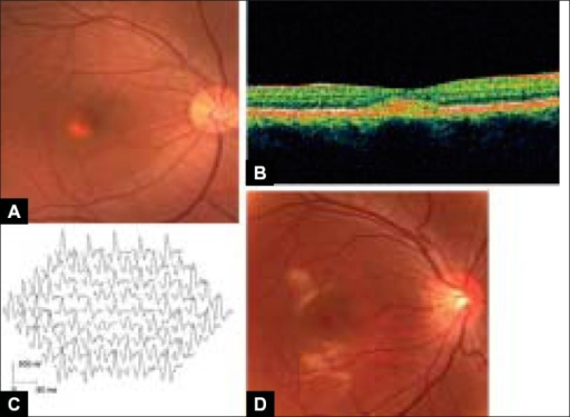 Fundus photograph, optical coherence tomograms (OCT) and multifocal ERGs of patient with Best macular dystrophy and her normal son (A) Fundus photograph of the right eye of the proband. The fundus shows yellowish material in vitelliform cysts in the macula, (B) OCT image through the yellowish lesion of the proband shows a highly reflective spindle-shaped zone between the photoreceptor layer and retinal pigment epithelial layer, (C) Multifocal ERGs of the right eye of the patient showing reduced responses from the macular area compared with those in a normal control, (D) Fundus photograph of the right eye of a 12-year-old son. The fundus shows irregular reflex in the macula