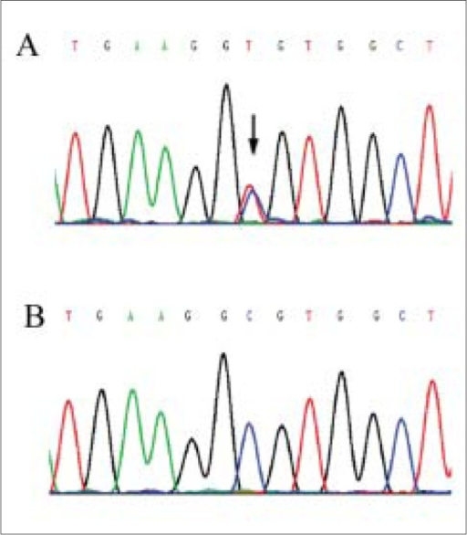 Sequence analysis of VMD2 (A) The arrow indicates the heterozygous mutation of C to T change at nucleotide 584 (Ala195Val), (B) No equivalent mutation is detected in the subject's son or control subjects