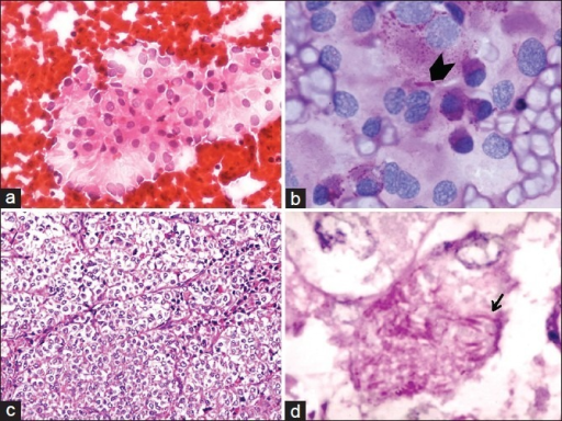 (a) Clusters of cells with round to oval nuclei, prominent large nucleoli, abundant pale finely vacuolated to granular cytoplasm, with fraying of the cytoplasmic margins (H and E, ×200). (b) PAS stain with diastase digestion showing PAS-positive, diastase-resistant intracytoplasmic magenta pink granules and occasional crystals (arrow head) (PAS with diastase, ×400). (c) Histology showing characteristic alveolar pattern separated by fibrovascular septae and comprising similar cells (H and E, ×100). (d) PAS stain highlighting the diastase-resistant intracytoplasmic needle-like structures (arrow) (PAS with diastase, ×400)