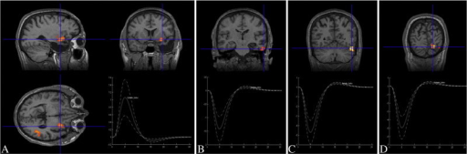 EEG–fMRI results of our patient showing discharge-correlated BOLD changes in: A) the right AT (z = 4.04, BOLD+) and the ipsilateral posterior lateral temporal neocortex (z = 3.82, BOLD+); B) the right anterior inferior temporal gyrus (z = 4.77, BOLD−), opposite to the posterior resection border; C) the right posterior inferior temporal gyrus (z = 6.81, BOLD−); and D) the right mesiobasal occipital region (z = 6.07, BOLD−).