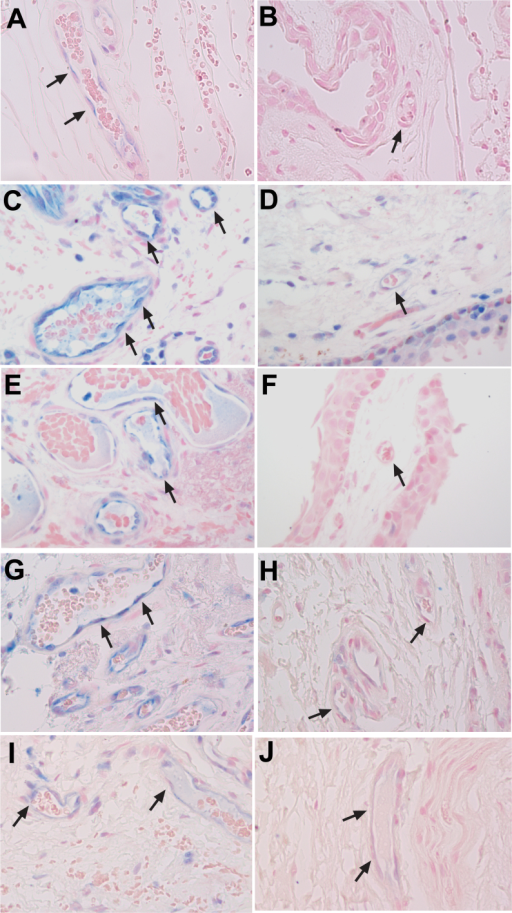 Increased RAGE expression in vascular endothelial cells in human primary pterygium compared to corresponding conjunctiva samples. RAGE staining in pterygium (A) and conjunctiva (B) samples from case 4. RAGE staining in pterygium (C) and conjunctiva (D) samples from case 5. RAGE staining in pterygium (E) and conjunctiva (F) samples from case 6. RAGE staining in pterygium (G) and conjunctiva (H) samples from case 24. RAGE staining in pterygium (I) and conjunctiva (J) samples from case 25. Black arrows indicate vascular endothelial cells. The images were taken at 40X objective.
