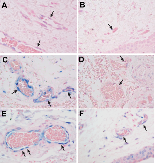 Increased RAGE expression in vascular endothelial cells in human recurrent pterygium compared to corresponding conjunctiva samples. RAGE staining in pterygium (A) and conjunctiva (B) samples from case 3. RAGE staining in pterygium (C) and conjunctiva (D) samples from case 14. RAGE staining in pterygium (E) and conjunctiva (F) samples from case 15. Black arrows indicate vascular endothelial cells. The images were taken at 40X objective.