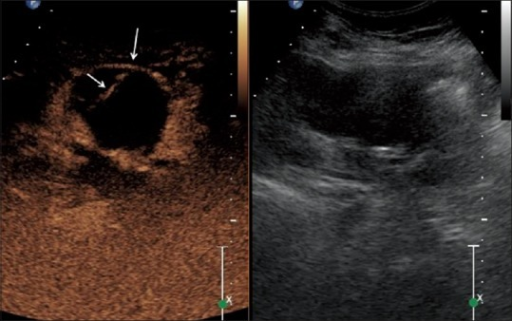 Paired CEUS and corresponding conventional image showing better visualization of complicated renal cyst (long arrow) with enhancing septation (short arrow). It was found to be papillary RCC at histopathology