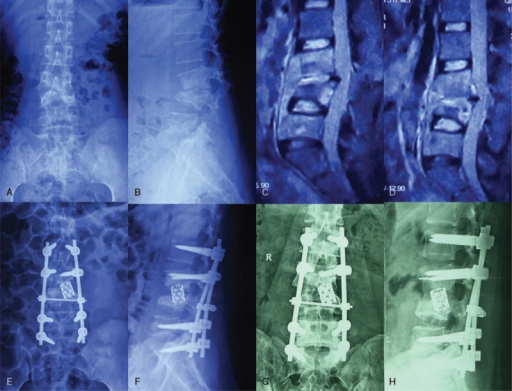 A 35-year-old female patient (a–h), preoperative X-ray (a, b) and MRI (c, d) shows L3, L4 vertebral body bone destruction with cyrtosis, compressed spinal dura mater, and paravertebral abscess. Postoperative 1 week, X-ray (e, f) show vertebral body height corrected with Cobb angle. Postoperative 1 year, X-ray (g, h) showed a good fixed position. MRI = magnetic resonance imaging
