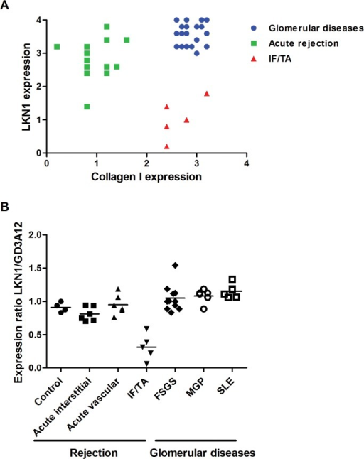 Correlation between the expression of the 4/2,4-di-O-sulfated DS domain recognized by antibody LKN1 and type I collagen (A) and the expression ratio of LKN1 and GD3A12 (B) in glomerular diseases, acute rejection and IF/TA.In acute (vascular and interstitial) rejection, the interstitial expression of the 4/2,4-di-O-sulfated DS domain recognized by antibody LKN1 is increased, while expression of collagen type I is decreased (A). Expression of collagen type I is increased in glomerular diseases and IF/TA, which is accompanied by an increased expression of the 4/2,4-di-O-sulfated DS domain in glomerular diseases and a decreased expression of the 4/2,4-di-O-sulfated DS domain in IF/TA. The expression ratio of the 4/2,4-di-O-sulfated DS domain recognized by antibody LKN1 to the IdoA-Gal-NAc4S DS domain recognized by antibody GD3A12 is decreased in the IF/TA patients in contrast to the patients with acute rejection or glomerular diseases (B).