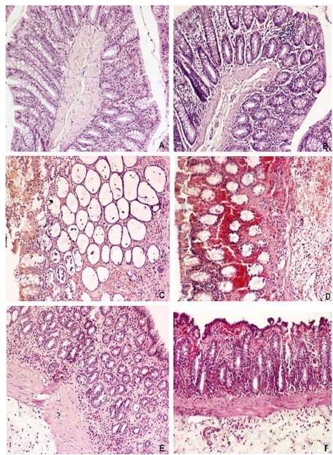 Histopathological features of the colon associated with colitis and the effects of Resveratrol (RSV) on colon injury. (A) Resveratrol (noncolitis) group (normal histological appearance of rat colonic mucosa), (B) Sham group (no histological modification), (C) TNBS-induced colitis group (widespread necrosis and diffuse infiltration of inflammatory cells in the mucosa- submucosa and submucosal edema), (D) TNBS colitis + DMSO group (similar pattern to TNBS colitis with evident diffuse hemorrhage), (E) TNBS colitis + Resveratrol (10mg/kg) group (diminished findings of the tissue injury, inflammation and edema in the colonic mucosa). Mucosal injury was produced by TNBS administration (25mg/animal), characterized by necrosis of epithelium, focal ulceration of the mucosa and diffuse infiltration of inflammatory cells in mucosa and submucosa as well as submucosal edema. Treatment with Resveratrol (10mg/kg) reduced the the morphological changes associated with TNBS administration protecting the mucosal architecture (Fig. 2E & 2F). Original magnifications was 100 x for all groups (A-E) on Hematoxylin and eosin stained slides.