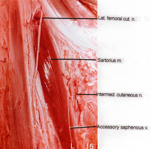 lateral femoral nerve; sartorius muscle; cutaneous nerve; saphenous vein