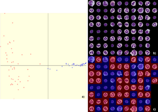 "Result of isolated white blood cell base ""segmentation"" by spectral analysis: (a) visualization of the data sorting (lymphocytes are shown in blue) allowing the partition of (b) the base of isolated cells, (c) view of isolated cells sorted by spectral analysis."