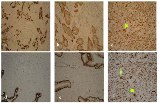 Immunohistochemical stains on core breast biopsy tissue. a. Case 1: Pancytokeratin. b. Case 1: SMA. c. Case 1: Vimentin (arrow marks multinucleated giant cells in stroma). d. Case 2: Pancytokeratin. e. Case 2: SMA. f. Case 2: Vimentin (arrow marks multinucleated giant cells in stroma).