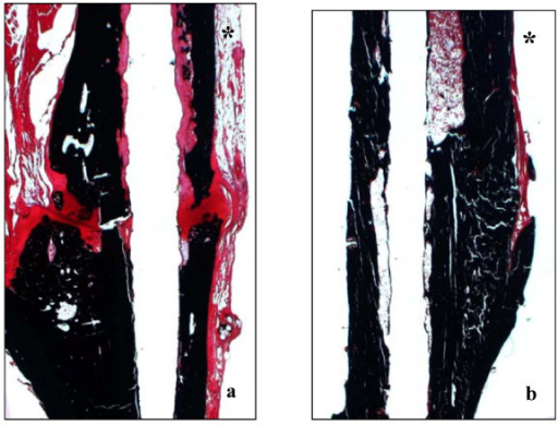 (a and b). Safranin O/von Kossa staining to detect mineralized bone (black staining) of comparable areas in representative tibiae 84 d after osteotomy (a) and fracture (b) and intramedullary stabilization demonstrating nonunion and regular healing respectively. Cavities correspond to the 1 mm wire diameter. Asterisks indicate the proximal and anterior tibial side.