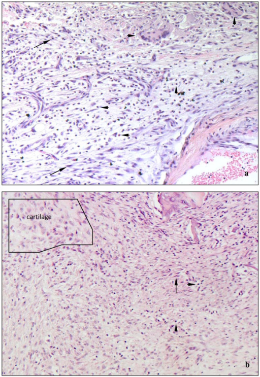 (a and b). Micrographs of representative cellular types in callus adjacent to the bone defect after 10 d. Apart from fibrozytes and fibroblasts (arrows), osteotomized animals accumulate large numbers of lymphocytes, granulocytes and multinucleated giant cells (arrowheads). In contrast, callus in fractured animals hardly contained any inflammatory cells (b). HE staining, magnification 200×.