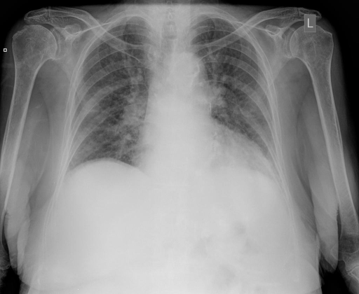 AP and lateral views of the Chest performed XXXX/XXXX.