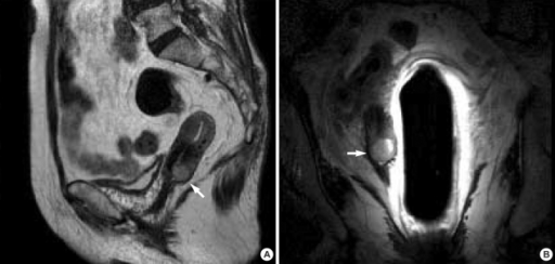 MRI findings in this patient. (A) T2 weighted image (B) T2 weighted image using an endorectal coil. The white arrow indicates a 2.0×1.6 cm cervical mass, comparable with cervical cancer.