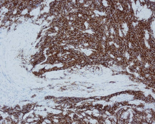 Immunohistochemical staining of the small cell carcinoma of the anus.