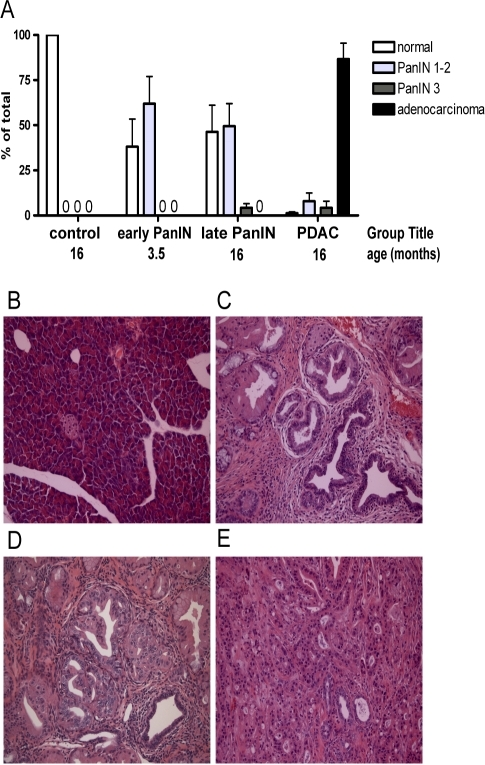 Malignant progression of pancreatic duct epithelia in p48-Cre/LSL-KrasG12D mice.(A) Quantitation of histopathologic alterations in the pancreata of controls or p48-Cre/KrasG12D mice. The samples were separated into controls, early stage dysplastic lesions (PanIN-1 and -2), late stage dysplastic lesions (PanIN-3 present) and invasive pancreatic duct adenocarcinoma (PDAC). (B to E) Representative histopathology images from each of the groups: (B) normal pancreas, (C) PanIN-1 and -2 (early), (D) PanIN-3 (late) and (E) PDAC. Mean ± standard error of the % of the pancreatic tissue with the respective lesions is shown (n = 3 animals for each group). 0, not detected.