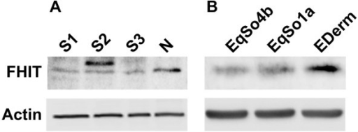Western blotting analysis of FHIT protein in sarcoid tissues and sarcoid derived cell lines. A) The expression of FHIT is reduced in sarcoids (S1, S2 and S3) compared to normal skin sample (N). B) FHIT protein expression in EqSO1a and EqSO4b in comparison with E-DERM. The lower blot shows actin expression to demonstrate the same amount of protein loaded on the gel.