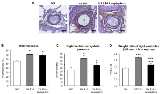 Effect of sepiapterin on hypoxia-induced remodeling of pulmonary arterioles, right ventricular pressure and hypertrophy.(A) Representative pictures, and (B) quantified data of wall thickness of pulmonary arterioles in mice exposed to normoxia (NX) or in mice exposed to 21 days of hypoxia (HX 21d) which were treated or not with sepiapterin (30 mg/kg, one day before exposure to hypoxia and every other day during hypoxia). (C) Right ventricular systolic pressure and (D) weight ratio right ventricle / (left ventricle + septum) in mice exposed to normoxia (NX) or in mice exposed to 21 days of hypoxia (HX 21d) which were treated or not with sepiapterin (30 mg/kg, one day before exposure to hypoxia and every other day during hypoxia). Results are expressed as mean ± SEM from all the arteries on each lung section from 4 to 7 mice for wall thickness, from 6-14 mice for right ventricular systolic pressure and from at least 8 experiments for weight ratio right ventricle / (left ventricle + septum). * p<0.05, *** p<0.001, compared to NX ; #p<0.05, ###p<0.001 compared to 21 days hypoxia.
