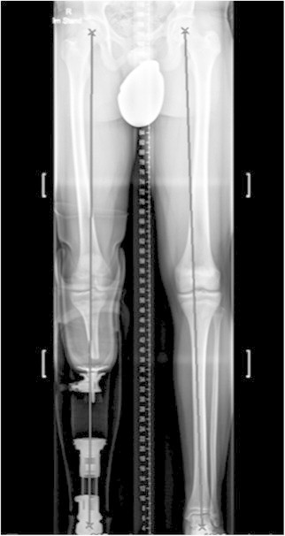 Preoperative conventional weight-bearing and AP hip-knee-ankle radiographs. Manually drawn Mikulicz line displaying the mechanical axis depicts minimal valgus at right leg (left on image) and slight varus deformity at left leg. Right lower extremity replaced by prosthesis.