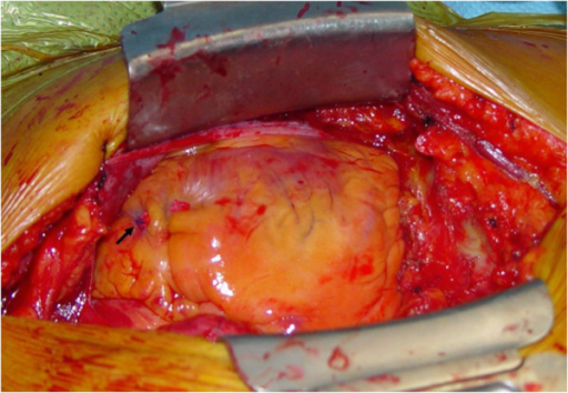 Intraoperative view of the perforating lesion which was sutured (arrow).