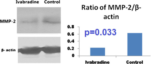 Western blot analysis of the phosphorylation of MMP-2. MMP-2 was dephosphorylated significantly in the ivabradine group, compared with the control group.