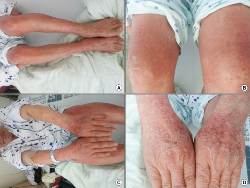 Generalized skin eruption and exfoliation showed in whole body on the first day of admission. Leg (A), thigh (B), arm (C), and hand (D).