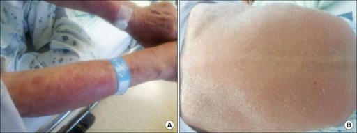 Recurrence of generalized skin lesion including rash and exfoliation following re-challenging of isoniazid. Arm (A) and back (B).