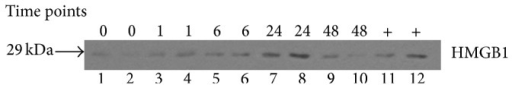 Time course of plasma HMGB1 level after pseudofracture (PF). Western blot of HMGB1 in plasma at time points after PF. LPS-stimulated macrophages were used as positive controls (lanes 11-12). Control mouse was used as time 0. n = 3 mice per time point.