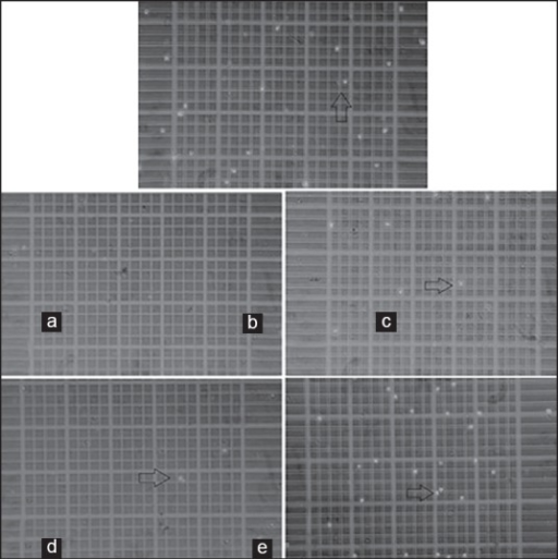 Cells counting procedure - photomicrographs of the Neubauer Chamber on inverted phase microscope. Live cells appear in suspension, colorless and bright (refractile) under phase contrast (arrow). Dead cells, non-viable, are stained with Trypan Blue and are non-refractile. (a) Control group, (b) sealer 26, (c) Endofill, (d) AH Plus and (e) Biosealer (×100)