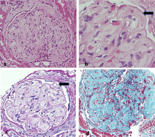 Light microscopic features of collagenofibrotic glomerulopathy. (a)Glomerulus with mesangiocapillary pattern of injury in form of mesangial expansion and capillary wall thickening without increase in mesangial cellularity (hematoxylin–eosin, original magnification ×400); (b) glomerulus with subendothelial (indicated by arrow) and mesangial expansion by pale amorphous vaguely fibrillar material (hematoxylin–eosin, original magnification ×1000); (c) glomerulus showing thin delicate PAS-positive basement membrane (indicated by arrow), while the capillary wall thickening is contributed by pale PAS-negative material (PAS, original magnification ×400); (d) Masson's trichrome shows blue staining of the deposited material thereby indicating it to be collagen (trichrome stain, original magnification ×400).
