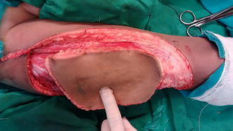 Harvested free anterolateral thigh flap.