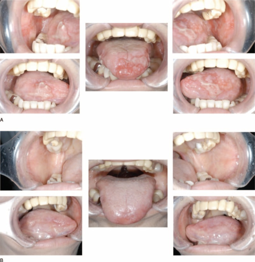 Clinical findings in oral cavity from patient with Good syndrome (GC) (Case 1). (A) Oral mucosa and tongue at the initial visit. (B) Oral mucosa and tongue after thymectomy.