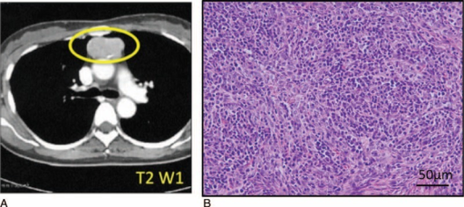 Imaging and histological findings in thymus gland from patient with Good syndrome (GS) (Case 1). (A) Computed tomography findings demonstrating mediastinal abnormality and mass in the anterior mediastinum (yellow circle). (B) Thymus gland specimen was stained with hematoxylin and eosin (HE). Scale bar, 50 μm.