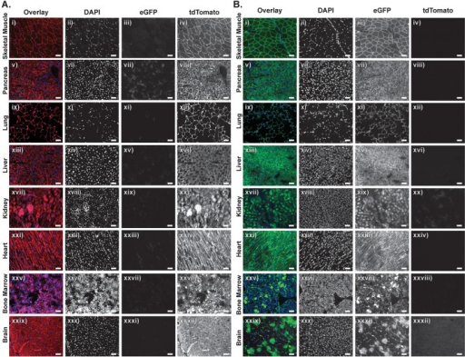 Characterization of tamoxifen-mediated Cre-ERT2 activity in Col1a1FRT-Cre-ER-T2-FRT mice. (A) Immunofluorescence of tissues from 6-week-old Col1a1FRT-Cre-ER-T2-FRT; Rosa26mTmG/+ mice (n=2) without tamoxifen treatment show widespread tdTomato with tissue-specific minimal to no eGFP expression, with the pancreas showing the most Cre-ERT2 leakiness (Avii). (B) Immunofluorescence of tissues collected 30 days after one dose of intraperitoneal tamoxifen in 6-month-old mice (n=3) show extensive Cre-mediated expression of eGFP and tissue-specific tdTomato degradation. Note that the brain (Bxxxii) has the highest amount of tdTomato retention as well as areas of low/no eGFP expression. Scale bars: 50 µm.