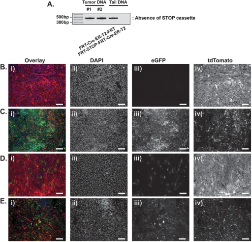 Characterization of primary sarcomas generated in Col1a1FRT-STOP-FRT-Cre-ER-T2; KrasFRT-STOP-FRT-G12D/+; p53FRT/FRT; Rosa26mTmG/+ mice. Primary sarcomas were generated by intramuscular injection of adenovirus expressing FlpO recombinase into the hindlimb of 6-week-old Col1a1FRT-STOP-FRT-Cre-ER-T2; KrasFRT-STOP-FRT-G12D/+; p53FRT/FRT; Rosa26mTmG/+ mice. (A) Primary sarcoma cells were isolated by dissociation of the bulk tumor and subsequent in vitro passage. The excision of the STOP cassette in the Col1a1FRT-STOP-FRT-Cre-ER-T2 allele was confirmed via PCR for two tumors using primers FWD4 and REV2. Tail DNA from untreated Col1a1FRT-Cre-ER-T2-FRT mice serves as positive control for the absence of the STOP cassette, whereas the tail DNA from Col1a1FRT-STOP-FRT-Cre-ER-T2 mice serves as negative control for the retention of the STOP cassette. (B) After tumor formation in Col1a1FRT-STOP-FRT-Cre-ER-T2; KrasFRT-STOP-FRT-G12D/+; p53FRT/FRT; Rosa26mTmG/+ mice (n=2), one dose of tamoxifen was delivered by intraperitoneal injection. Tumors were collected 10 days after tamoxifen delivery. Immunofluorescence of tumor tissue showed no eGFP expression (iii), with the whole tumor retaining tdTomato (iv). (C) After tumor formation in Col1a1FRT-STOP-FRT-Cre-ER-T2; KrasFRT-STOP-FRT-G12D/+; p53FRT/FRT; Rosa26mTmG/+ mice (n=2), 4-hydroxytamoxifen was delivered by intramuscular injection at the site of the tumor. Tumors were collected 10 days after 4-hydroxytamoxifen delivery. Immunofluorescence of tumor tissue showed scattered tdTomato expression labeling tumor vasculature and other stromal cells (iv), with the majority of tumor tissue expressing eGFP, which labels tumor parenchyma (iii). (D) After tumor formation in Col1a1FRT-STOP-FRT-Cre-ER-T2; KrasFRT-STOP-FRT-G12D/+; p53FRT/FRT; Rosa26mTmG/+ mice (n=2), one dose of 4-hydroxytamoxifen was delivered by subcutaneous injection between the scapula. Tumors were collected 24 h after 4-hydroxytamoxifen delivery. Immunofluorescence of tumor tissue showed widespread tdTomato expression (iv), with small clusters of cells expressing eGFP, which labels tumor parenchyma (iii). (E) After tumor formation in Col1a1FRT-STOP-FRT-Cre-ER-T2; KrasFRT-STOP-FRT-G12D/+; p53FRT/FRT; Rosa26mTmG/+ mice (n=1), 4-hydroxytamoxifen was delivered by one dose of intraperitoneal injection, followed by three doses of subcutaneous injection between the scapula. Doses of 4-hydroxytamoxifen were given in 24 h intervals. Tumors were collected 1 day after the last dose of 4-hydroxytamoxifen delivery. Immunofluorescence of tumor tissue showed scattered tdTomato expression labeling tumor vasculature and other stromal cells (iv), and cells with varying degrees of eGFP expression (iii). These results indicate that the Col1a1FRT-STOP-FRT-Cre-ER-T2 is functional and can be utilized for sequential mutagenesis in vivo. Scale bars: 100 µm.