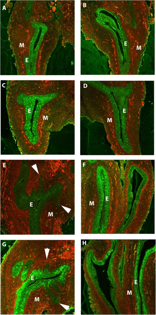 Ornithine decarboxylase protein was present in the urogenital epithelium in the developing urogenital sinus.In the male UGS before budding at E15 (A) and E16 (B), ornithine decarboxylase protein (green) was present in the epithelium. As the buds emerged from the epithelium at E17 (E) and E18 (G), ornithine decarboxylase protein was still expressed in the epithelium and buds. In the female UGS, ornithine decarboxylase was present in the epithelium at E15 (B) and E16 (D), the period before prostatic buds are initiated in the male UGS. At E17 (F) and E18 (H), ornithine decarboxylase protein continued to be expressed in the urogenital epithelium. Ornithine decarboxylase staining is in green, and vimentin staining is in red. There was some co-localization of ornithine decarboxylase and vimentin (yellow) in the mesenchyme. Arrowheads denote prostatic buds. Abbreviations: E epithelium, M mesenchyme.