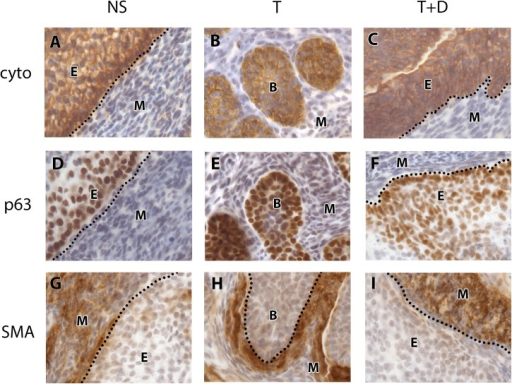 Markers of tissue compartments in the cultured UGS.Cytokeratin staining was confined to cytoplasm of the urogenital epithelial cells in the NS control (A), T treated UGS (B) and in the T+DFMO treated UGS (C). p63 staining was present in the nuclei of epithelial cells in the NS control (D), T treated UGS (E) and in the T+DFMO treated UGS (F). SMA staining was present in the cytoplasm of peri-ductal mesenchymal cells in the NS control (G), T treated UGS (H) and T+DFMO treated UGS (I). Positive immunostaining is brown. The dotted line demarcates the boundary between epithelium and mesenchyme. Abbreviations: B prostatic bud, cyto cytokeratin, DFMO difluoromethylornithine, E epithelium, M mesenchyme, NS no steroid control, SMA smooth muscle actin, T testosterone.