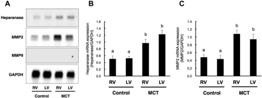 Expression of heparanase, MMP2 and MMP9 mRNA in right and left ventricles ofMCT-treated rats. Representative Northern blot image of heparanase, MMP2, MMP9 and GAPDHin the right (RV) and left (LV) ventricles of control and MCT-treated rats (A).Densitometric analyses of heparanase (B) and MMP2 (C) mRNA levels. Levels werenormalized to GAPDH. Data are given as the mean ± SEM (n=4–5). Data labeled withdifferent letters are significantly different from each other(P<0.05).
