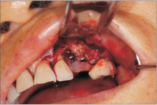 Intraoral photograph during surgery (May 2013).